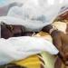 Congo/Santé : Deux cas de fièvre jaune au sud du pays