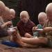 International : Au Malawi, l'on ne pourra plus tuer impunément les albinos